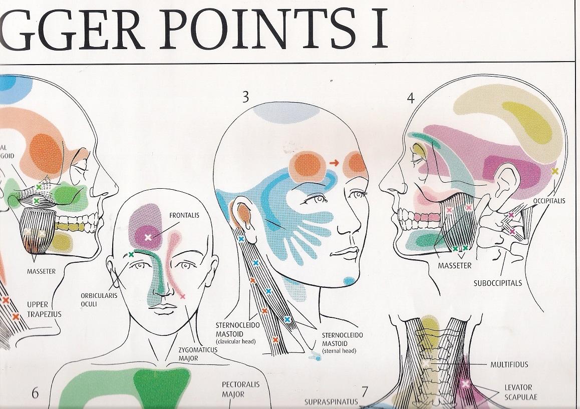 triggerpoints gezicht