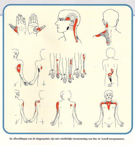 ontstoken zenuw nek